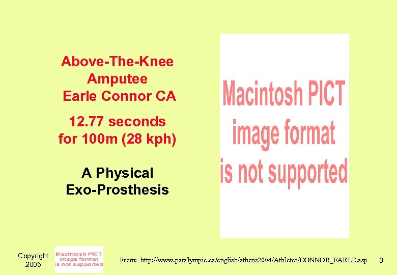 Above-The-Knee Amputee Earle Connor CA 12. 77 seconds for 100 m (28 kph) A