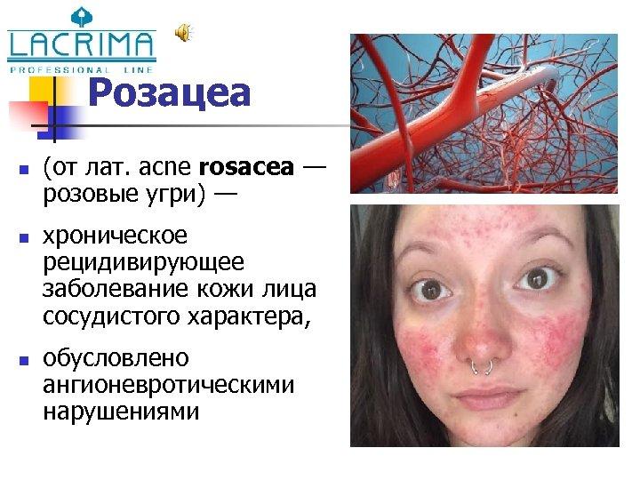 Розацеа n n n (от лат. acne rosacea — розовые угри) — хроническое рецидивирующее