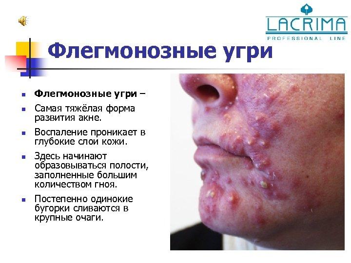 Флегмонозные угри n n n Флегмонозные угри – Самая тяжёлая форма развития акне. Воспаление
