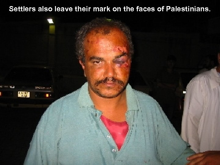 Settlers also leave their mark on the faces of Palestinians.