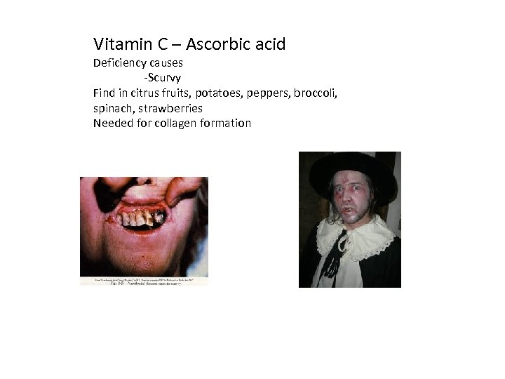 Vitamin C – Ascorbic acid Deficiency causes -Scurvy Find in citrus fruits, potatoes, peppers,