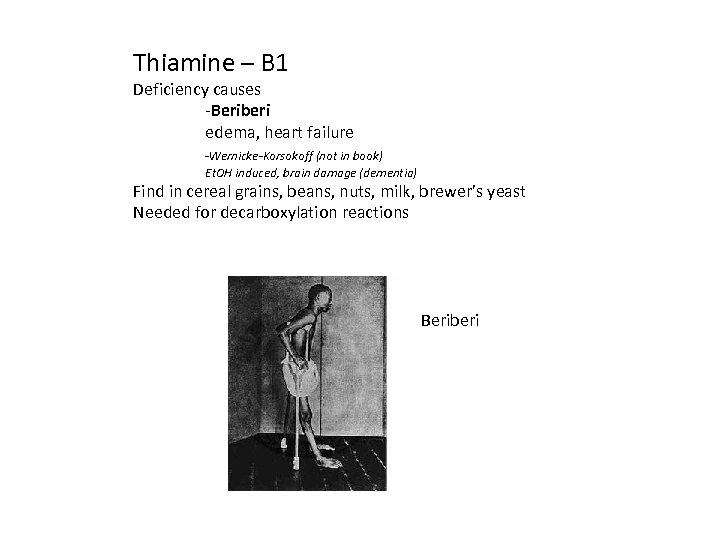 Thiamine – B 1 Deficiency causes -Beriberi edema, heart failure -Wernicke-Korsokoff (not in book)