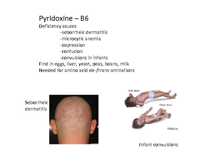 Pyridoxine – B 6 Deficiency causes -seborrheic dermatitis -microcytic anemia -depression -confusion -convulsions in
