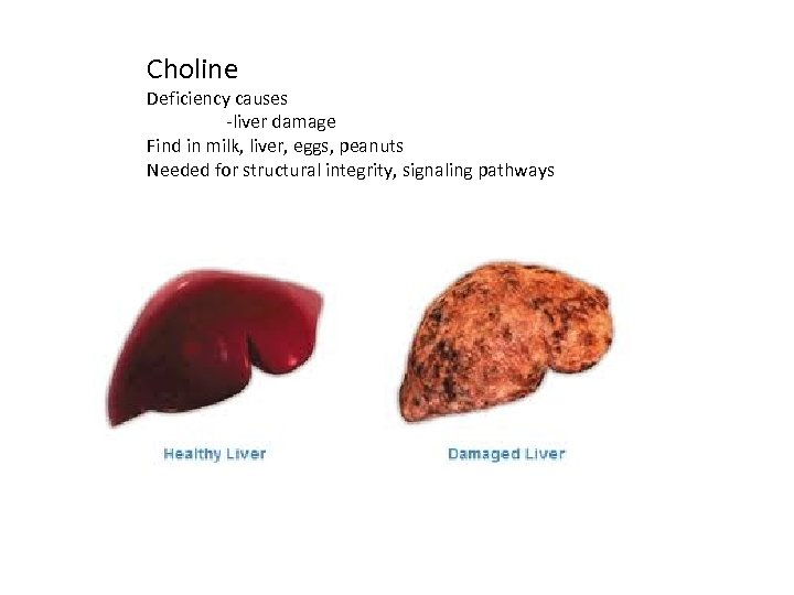 Choline Deficiency causes -liver damage Find in milk, liver, eggs, peanuts Needed for structural