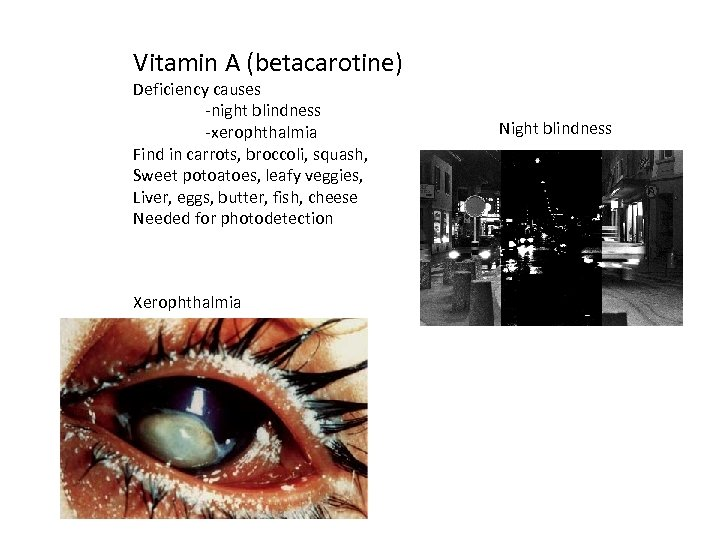 Vitamin A (betacarotine) Deficiency causes -night blindness -xerophthalmia Find in carrots, broccoli, squash, Sweet