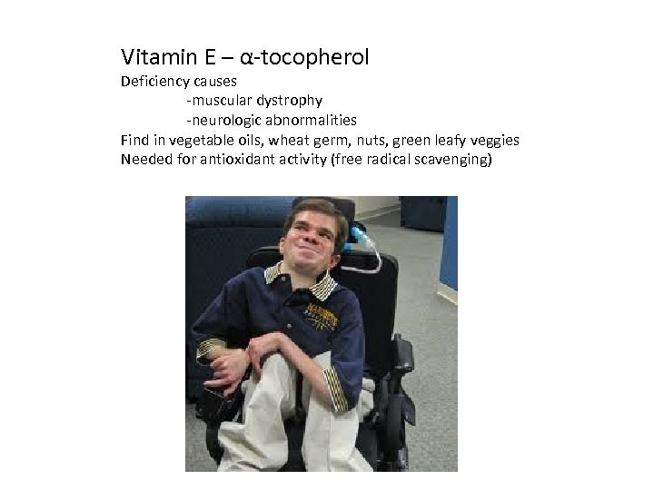Vitamin E – α-tocopherol Deficiency causes -muscular dystrophy -neurologic abnormalities Find in vegetable oils,