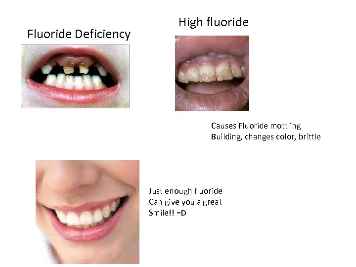 Fluoride Deficiency High fluoride Causes Fluoride mottling Building, changes color, brittle Just enough fluoride