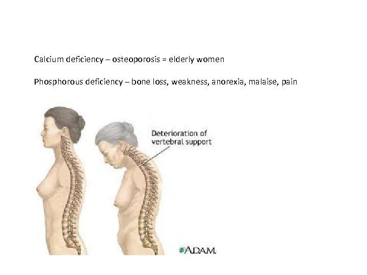 Calcium deficiency – osteoporosis = elderly women Phosphorous deficiency – bone loss, weakness, anorexia,