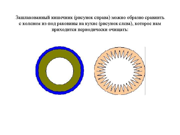 Зашлакованный кишечник (рисунок справа) можно образно сравнить с коленом из-под раковины на кухне (рисунок