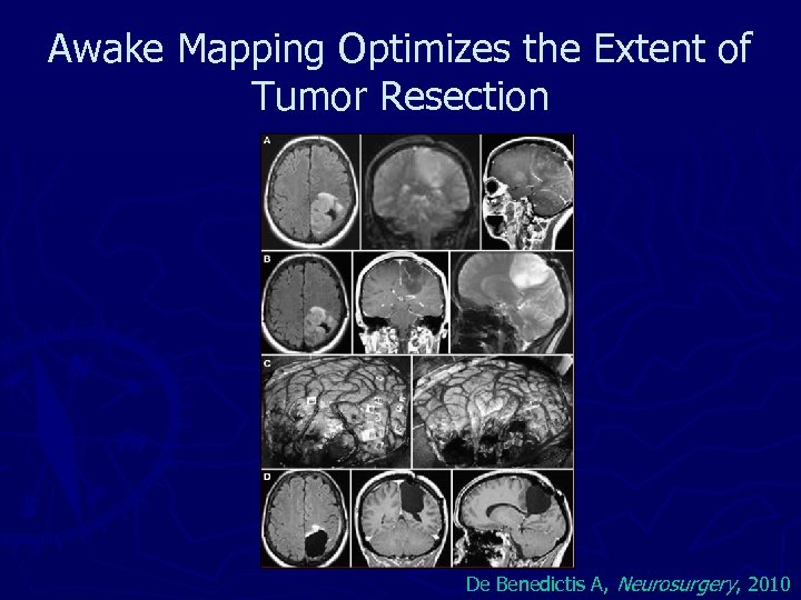 Awake Mapping Optimizes the Extent of Tumor Resection De Benedictis A, Neurosurgery, 2010