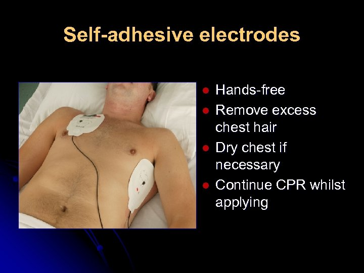 Self-adhesive electrodes l l Hands-free Remove excess chest hair Dry chest if necessary Continue