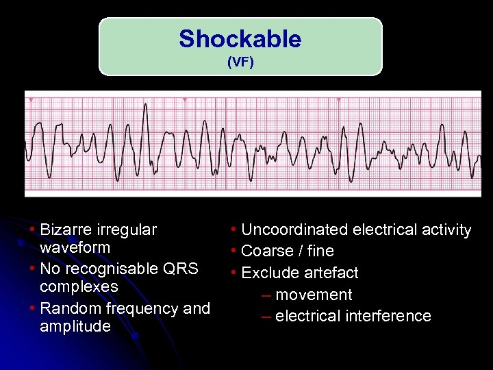 Shockable (VF) • Bizarre irregular waveform • No recognisable QRS complexes • Random frequency