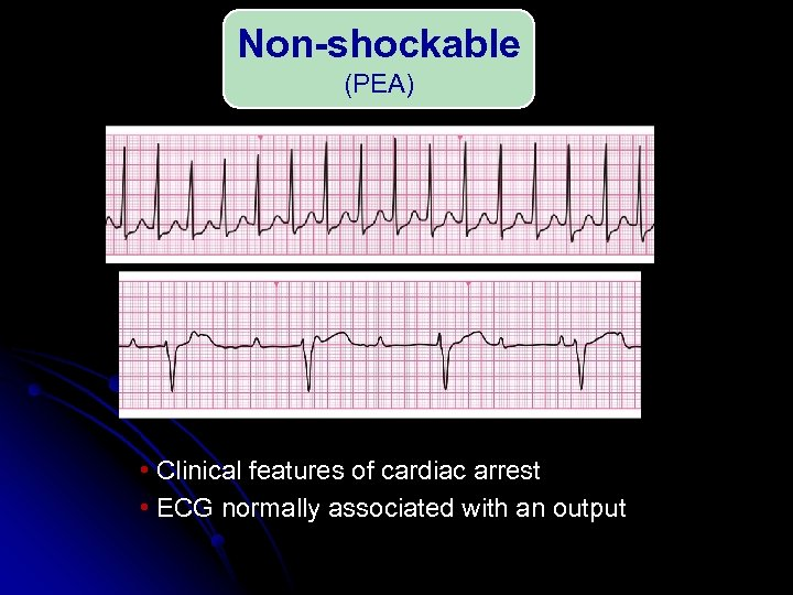 Non-shockable (PEA) • Clinical features of cardiac arrest • ECG normally associated with an