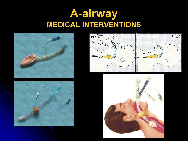 A-airway MEDICAL INTERVENTIONS