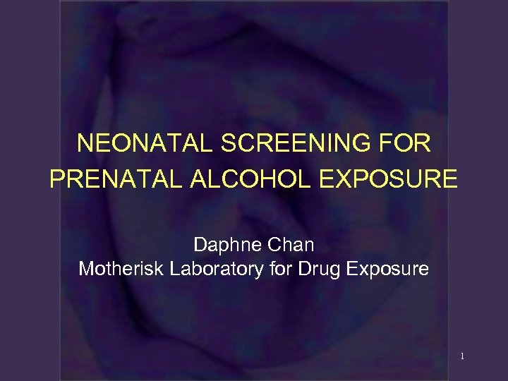 NEONATAL SCREENING FOR PRENATAL ALCOHOL EXPOSURE Daphne Chan Motherisk Laboratory for Drug Exposure 1