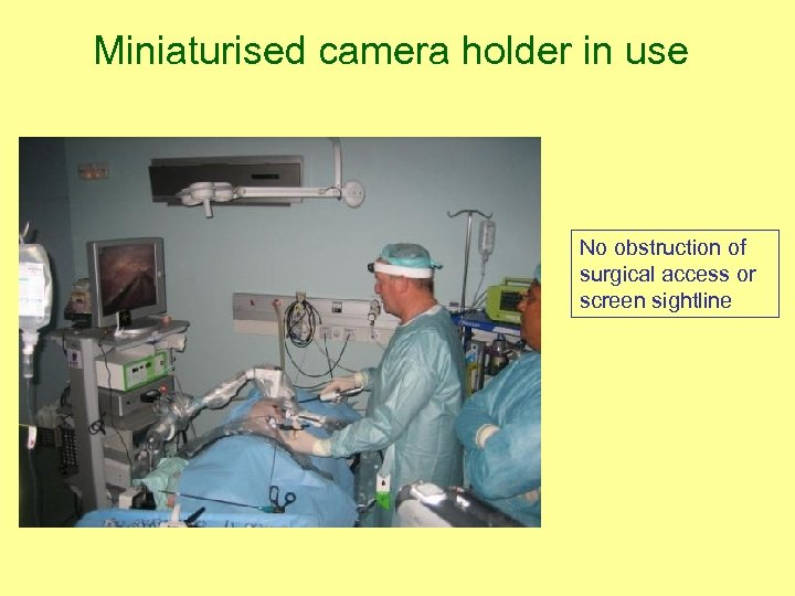 Miniaturised camera holder in use No obstruction of surgical access or screen sightline