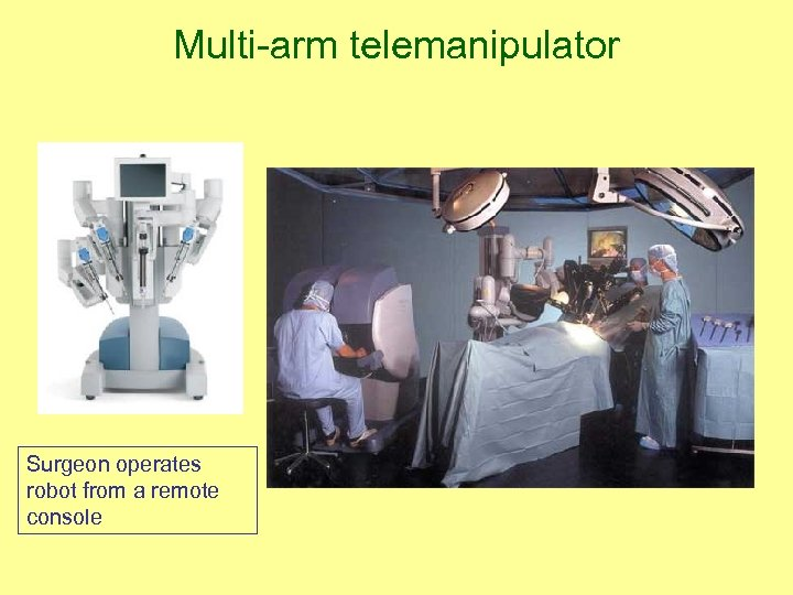 Multi-arm telemanipulator Surgeon operates robot from a remote console