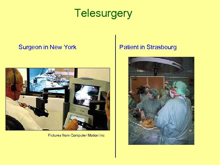 Telesurgery Surgeon in New York Patient in Strasbourg Pictures from Computer Motion Inc