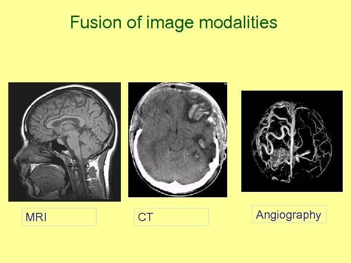 Fusion of image modalities MRI CT Angiography