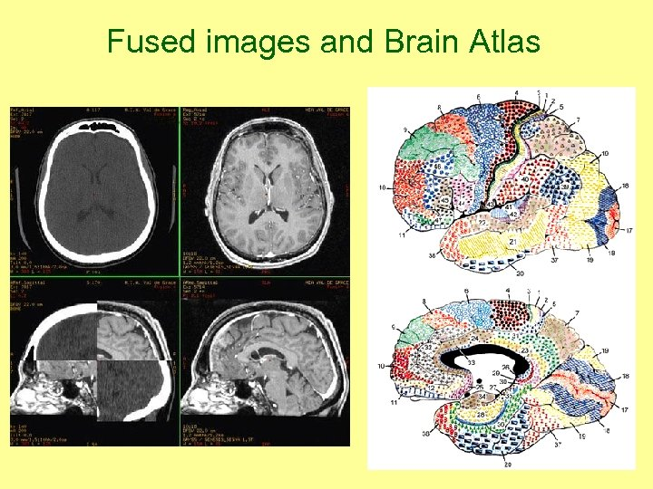 Fused images and Brain Atlas