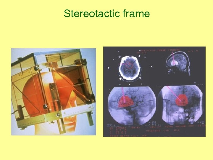 Stereotactic frame