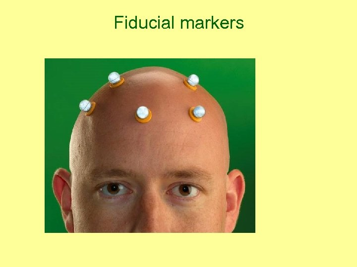 Fiducial markers