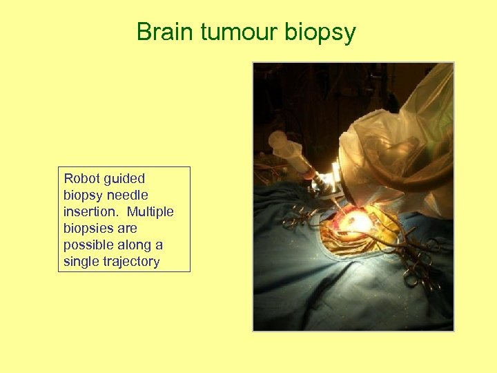 Brain tumour biopsy Robot guided biopsy needle insertion. Multiple biopsies are possible along a