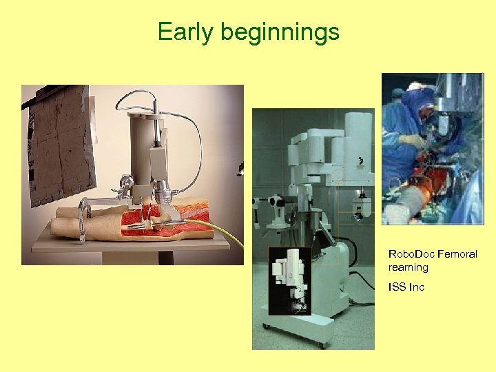 Early beginnings Robo. Doc Femoral reaming ISS Inc