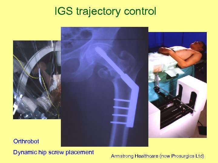 IGS trajectory control Orthrobot Dynamic hip screw placement Armstrong Healthcare (now Prosurgics Ltd)