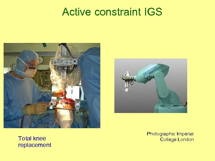 Active constraint IGS Total knee replacement Photographs: Imperial College London