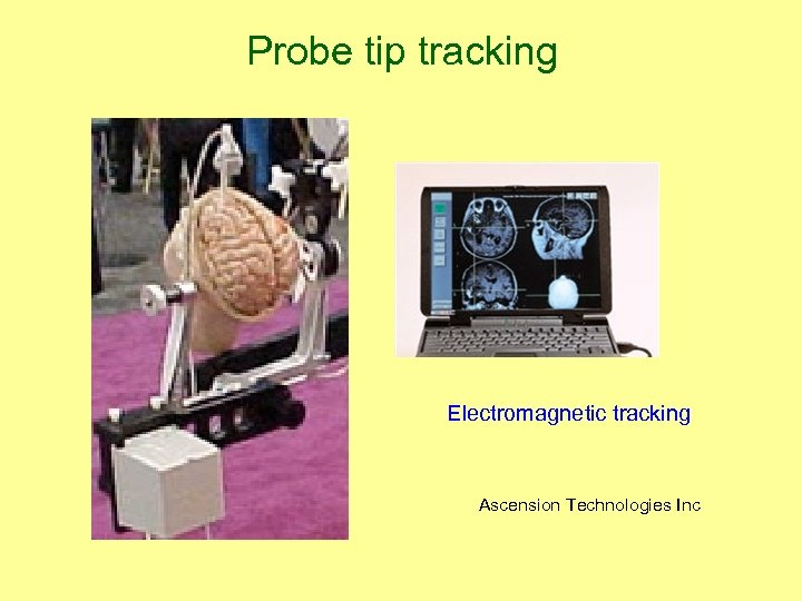 Probe tip tracking Electromagnetic tracking Ascension Technologies Inc