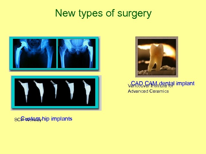 New types of surgery CAD CAM dental implant Vancouver Institute for Advanced Ceramics Custom