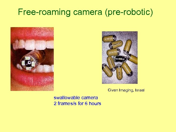 Free-roaming camera (pre-robotic) Given Imaging, Israel swallowable camera 2 frames/s for 6 hours