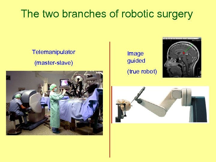 The two branches of robotic surgery Telemanipulator (master-slave) Image guided (true robot)