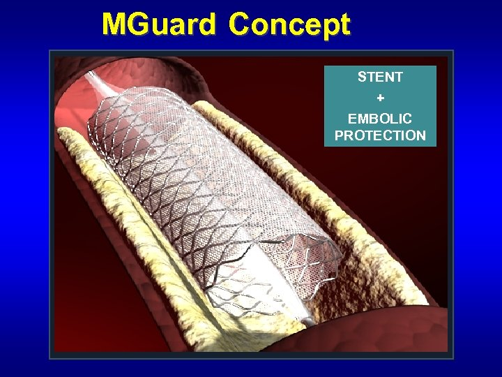 MGuard Concept STENT + EMBOLIC PROTECTION