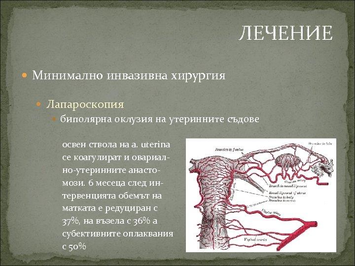 ЛЕЧЕНИЕ Минимално инвазивна хирургия Лапароскопия биполярна оклузия на утеринните съдове освен ствола на a.