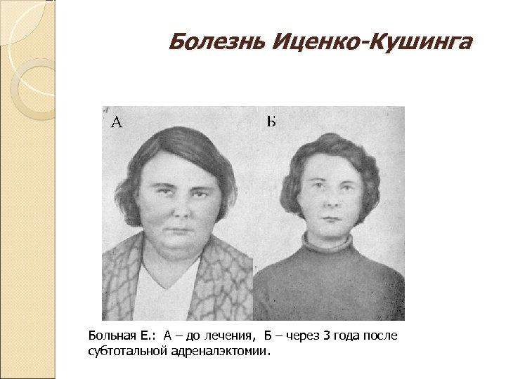 Болезнь Иценко-Кушинга Больная Е. : А – до лечения, Б – через 3 года
