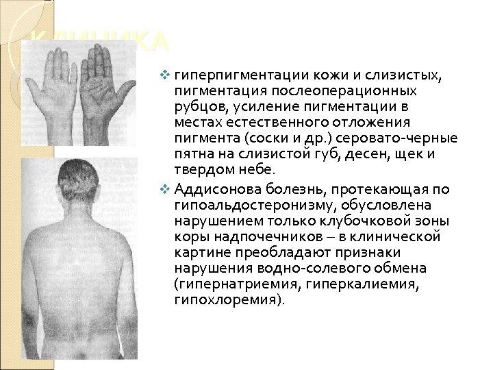 КЛИНИКА v гиперпигментации кожи и слизистых, пигментация послеоперационных рубцов, усиление пигментации в местах естественного