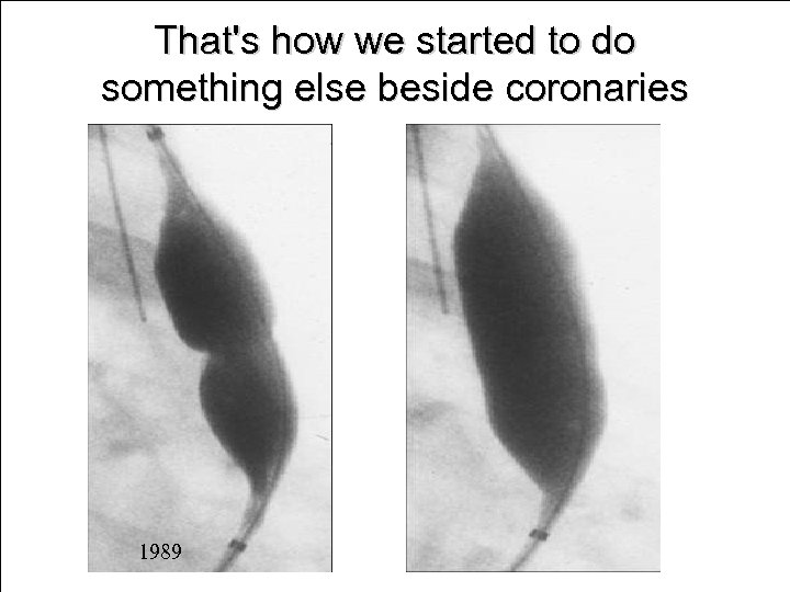 That's how we started to do something else beside coronaries 1989
