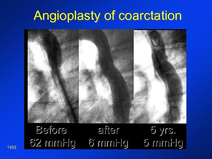 Angioplasty of coarctation 1992