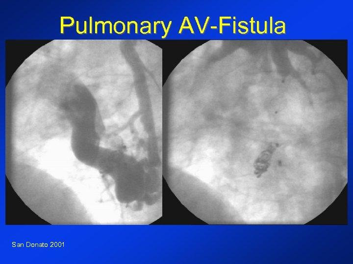 Pulmonary AV-Fistula San Donato 2001