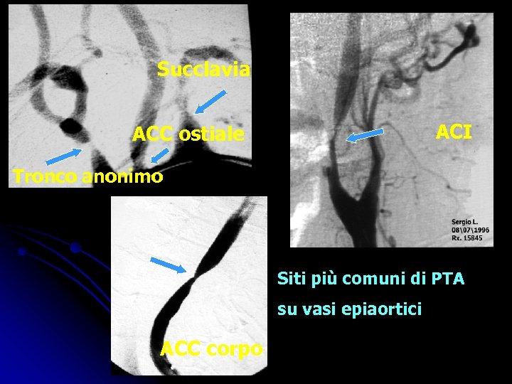 Succlavia ACI ACC ostiale Tronco anonimo Siti più comuni di PTA su vasi epiaortici