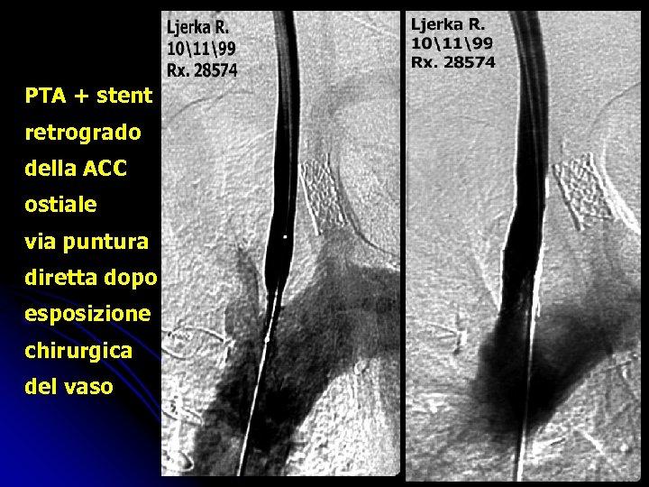 PTA + stent retrogrado della ACC ostiale via puntura diretta dopo esposizione chirurgica del