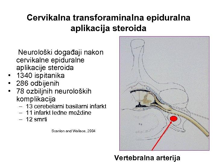 Cervikalna transforaminalna epiduralna aplikacija steroida Neurološki događaji nakon cervikalne epiduralne aplikacije steroida • 1340