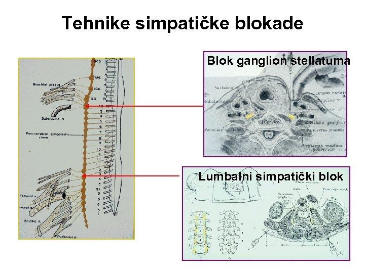 Tehnike simpatičke blokade Blok ganglion stellatuma Lumbalni simpatički blok