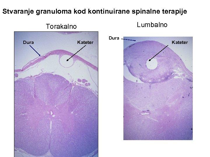 Stvaranje granuloma kod kontinuirane spinalne terapije Lumbalno Torakalno Dura Kateter
