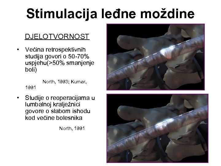 Stimulacija leđne moždine DJELOTVORNOST • Većina retrospektivnih studija govori o 50 -70% uspjehu(>50% smanjenje