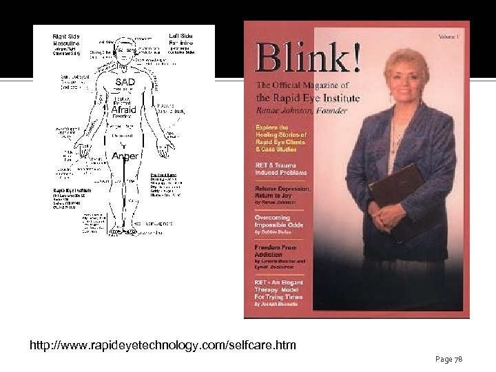 http: //www. rapideyetechnology. com/selfcare. htm Page 78