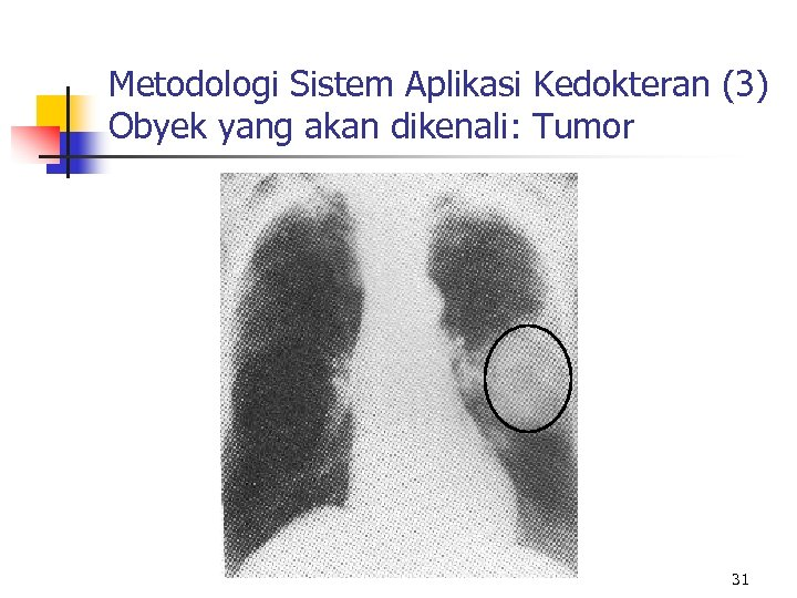 Metodologi Sistem Aplikasi Kedokteran (3) Obyek yang akan dikenali: Tumor 31