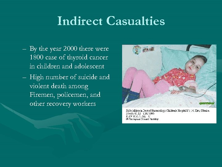 Indirect Casualties – By the year 2000 there were 1800 case of thyroid cancer